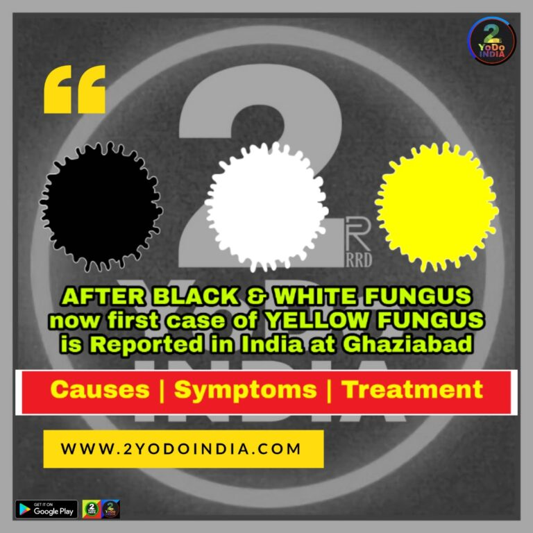 After Black and White Fungus Yellow Fungus case reported in Ghaziabad | Causes | Symptoms | Treatment | Causes of Yellow Fungus | Symptoms of Yellow Fungus | Treatment of Yellow Fungus | 2YODOINDIA